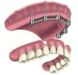 "Alt På 4"" tannimplantater Eksperter sammenligne Implantater med konvensjonelle broer"