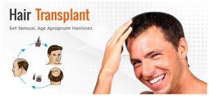 Hårtransplantasjon i utlandet: Sliter du med hårtap? Vi har løsningen!